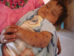 A Mayan baby with a rash on his arm which his parents say is caused by Goldcorp's Marlin mine // Rights Action